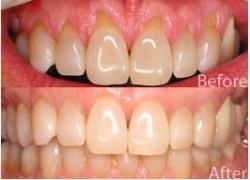 gum-tissue-grafts